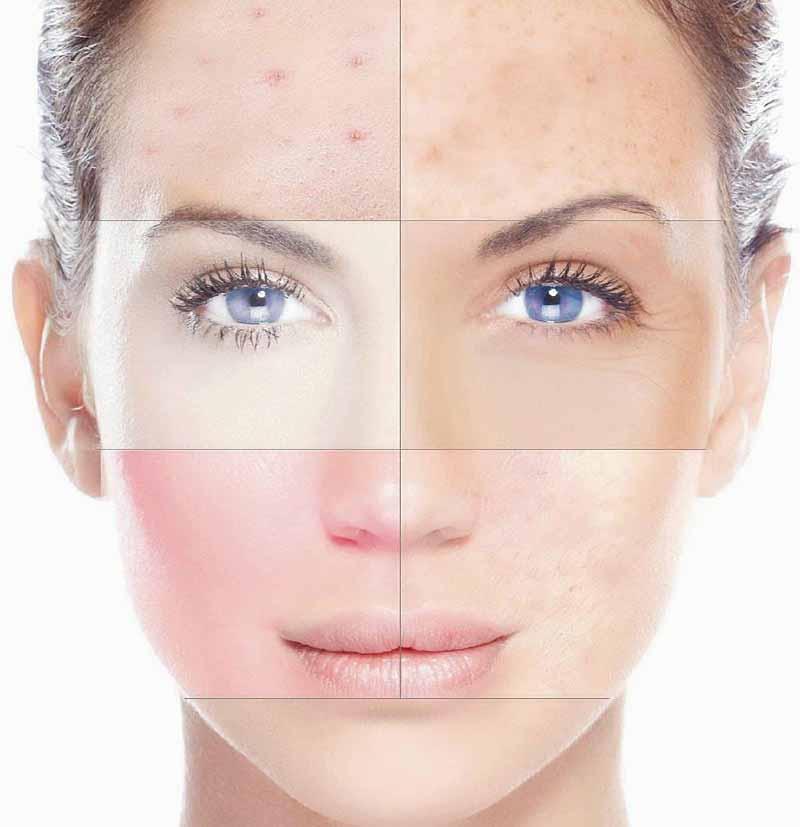 Типы кожи лица и правильный уход за ней